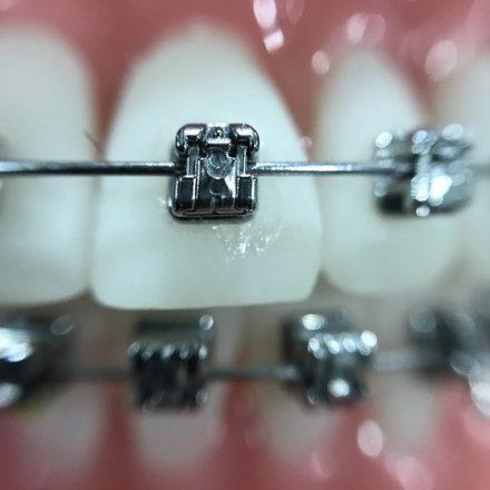 Orthodontics - Braces, Invisalign & Myobraces